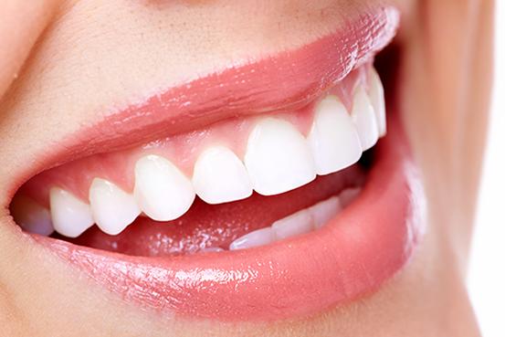 Infos über Ästhetische Zahnheilkunde in Schildesche