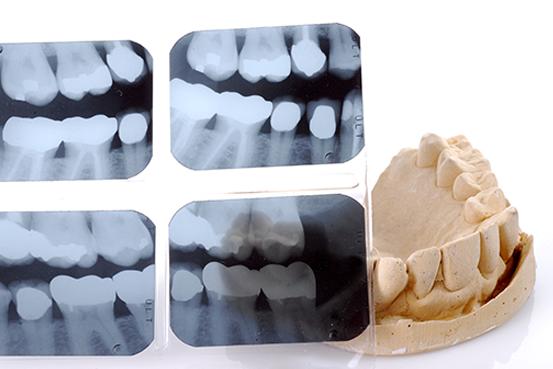 Infos über Digitales Röntgen in Brackwede