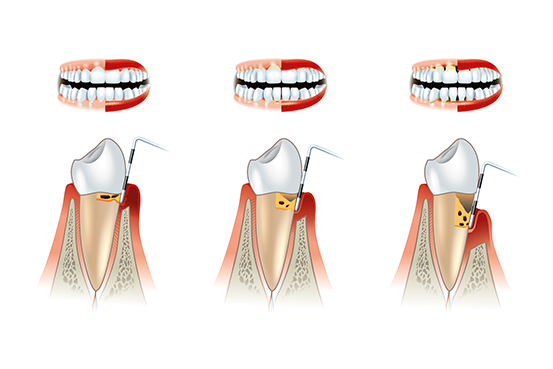 Infos über Behandlung Parodontitis in Altenhagen