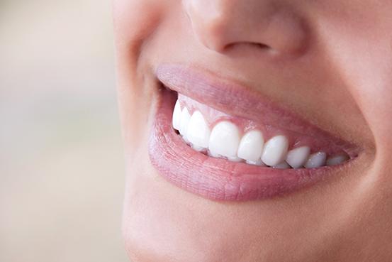 Infos über Unsichtbare Zahnspangen in Dalpke