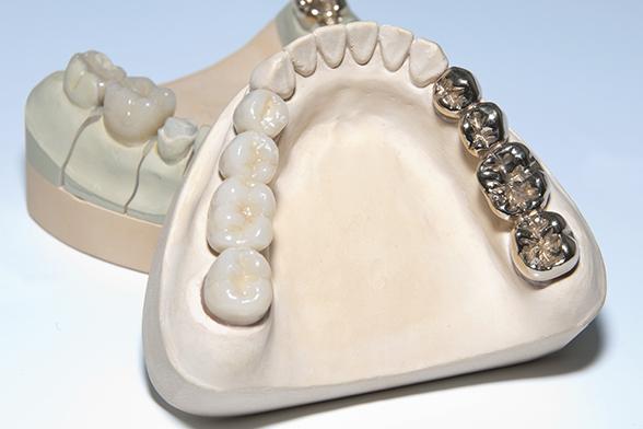 Infos über Zahnkronen in Schildesche